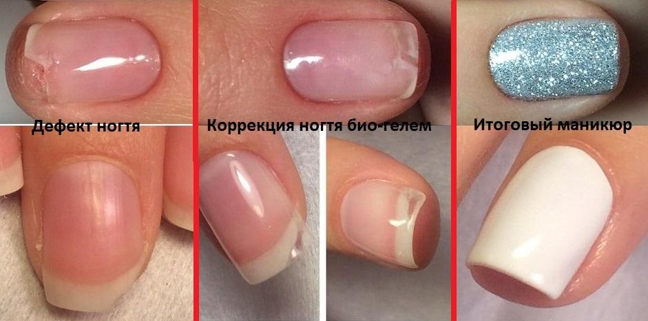 Цена биогеля для ногтей